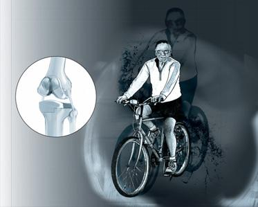 Prothèse totale du genou - Dr Mylle, chirurgien orthopédiste à Paris