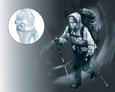 Prothèse unicompartimentale du genou - Dr Mylle, chirurgien orthopédiste àParis
