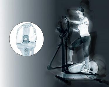 Recentrage rotulien - Dr Mylle, chirurgien orthopédiste à Paris