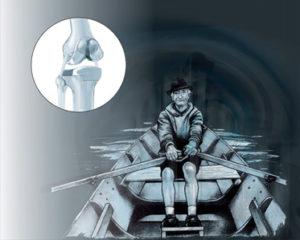 Reprise d'une prothèse - Dr Mylle, chirurgien orthopédiste à Paris