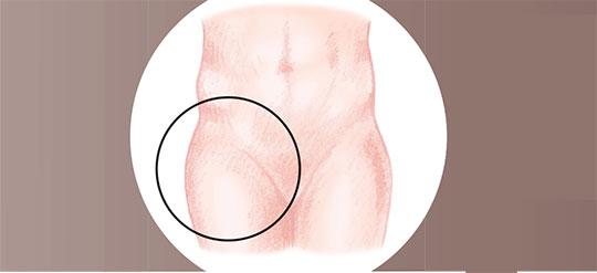 Chirurgie de l'athrose de la hanche à Paris - Dr Mylle