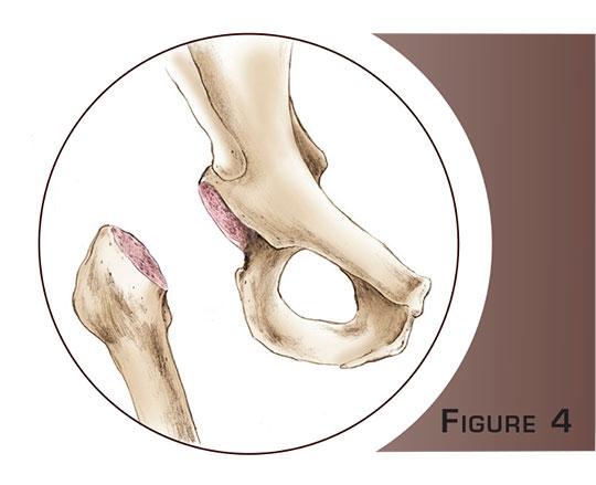 Chirurgie de l'arthrose de la hanche à Paris - Dr Mylle