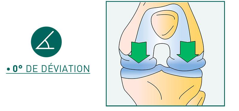 L'axe biomécanique du genou - Dr Mylle, chirurgien orthopédiste à Paris