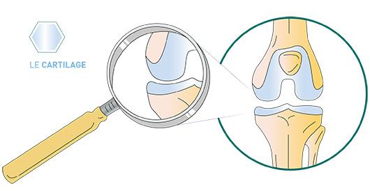 Cartilage articulaire du genou - Dr Mylle, chirurgie orthopédiste à Paris