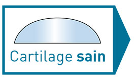 Cartilage sein - Dr Mylle, chirurgien orthopédiste à Paris