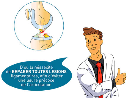 Laxité ligamentaire - Dr Mylle,chirurgien orthopédiste à Paris