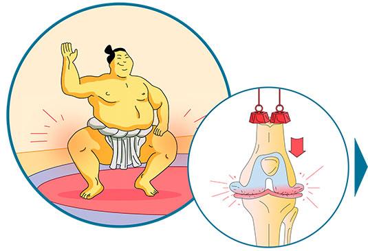 Les causes de l'usure des cartilages : le poids - Dr Mylle Paris
