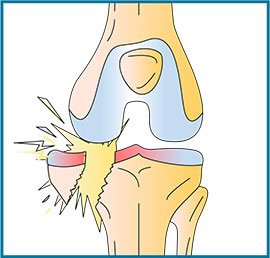 Les causes de l'usure des cartilages : le traumatisme - Dr Mylle Paris