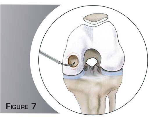 La chirurgie cartilagineuse - Dr Mylle, chirurgien orthopédiste à Paris
