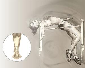 Chirurgie de la cheville : Rupture du tendon d'Achille - Dr Mylle, Paris