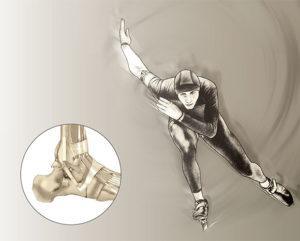 Chirurgie de la cheville : ligamentoplastie - Dr Mylle, Paris