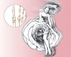 Chirurgie du pied : hallus valgus - Dr Mylle, Paris