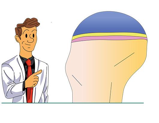 Les composants du cartilage articulaire du genou - Dr Mylle, chirurgie orthopédiste à Paris