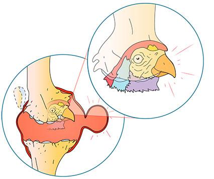 Conguence articulaire - Dr Mylle, chirurgien orthopédiste àParis