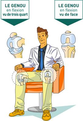 Les différentes faces du genou - Dr Mylle, chirurgien orthopédiste à Paris