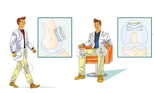 Les 3 compartiments du genou - Dr Mylle, Paris