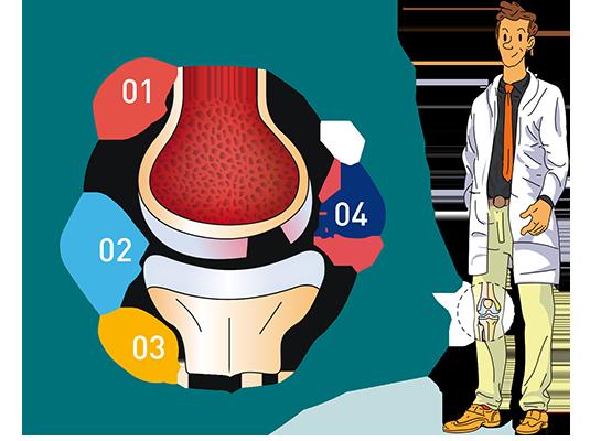Les lésions du cartilage - Dr Mylle, chirurgien orthopédiste à Paris