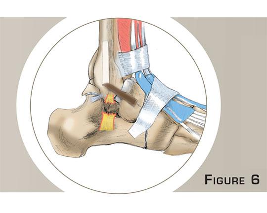 Ligamentoplastie de la cheville à Paris - Dr Mylle