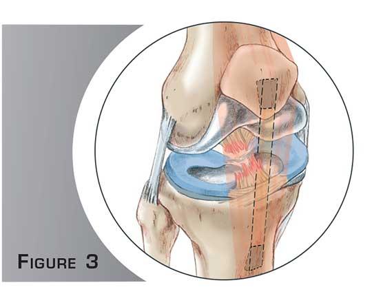 Ligamentoplastie du genou - Dr Mylle, chirurgien orthopédiste à Paris