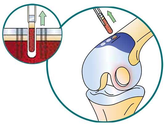 La Mosaicoplastie - Dr Mylle, chirurgien orthopédiste à Paris