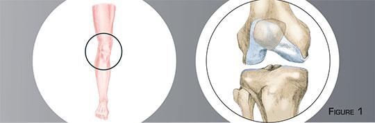 Ostéomie tibiale de valgisation - Dr Mylle, chirurgien orthopédiste à Paris