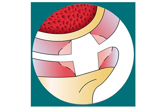 La perte du cartilage - Dr Mylle, chirurgien orthopédiste à Paris