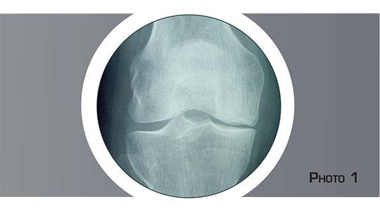 Prothèse unicompartimentale du genou - Dr Mylle, chirurgien orthopédiste à Paris