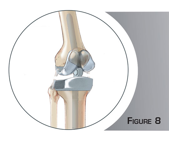 Reprise d'une prothèse du genou - Dr Mylle, chirurgien orthopédiste Paris