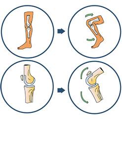 Traitement non chirurgical de l'arthrose - Dr Mylle, Paris