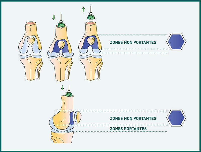 Les zones portantes du genou - Dr Mylle, chirurgie orthopédiste à Paris