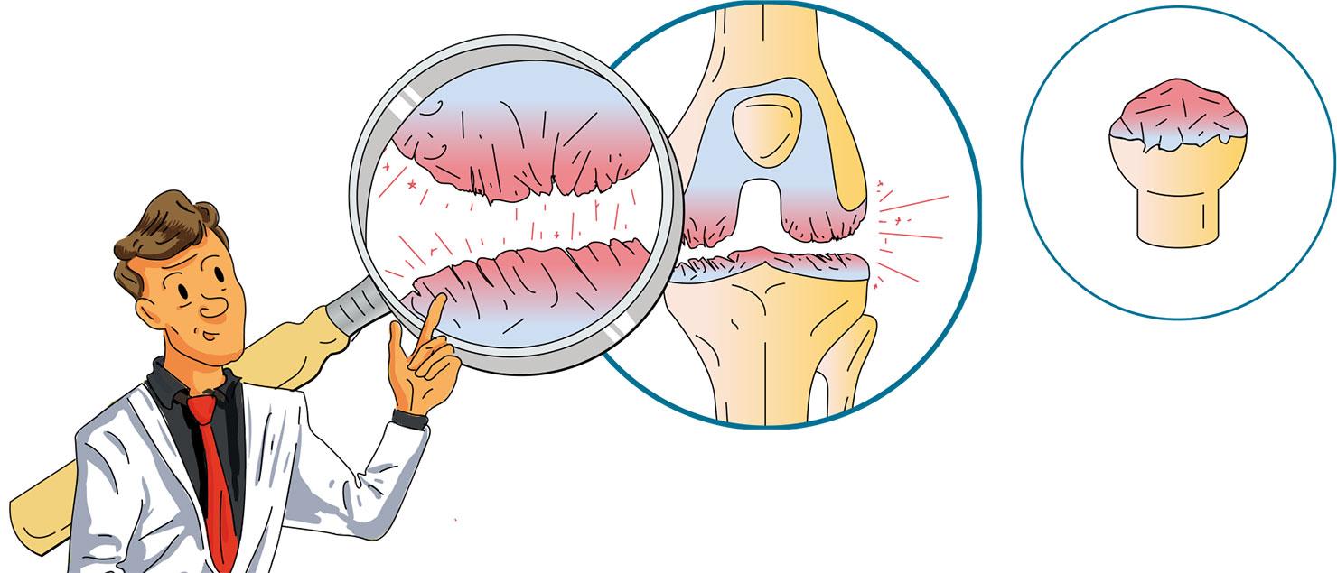 Traitement de la chondropathie à Paris - Dr Mylle