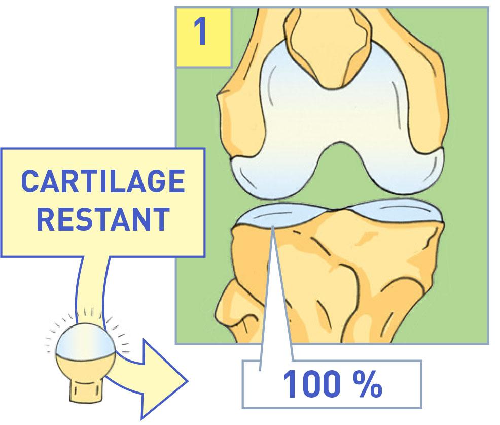 Subchondroplastie à Paris - Dr Guy Mylle